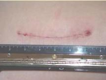 Såret syns här16 dagar efter operationen