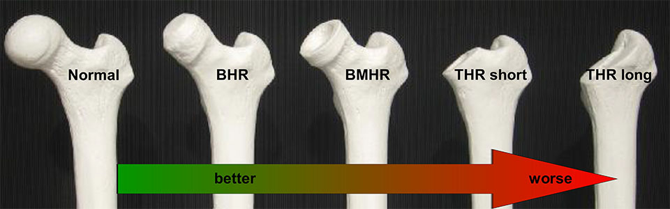 bhr-thr-enl960
