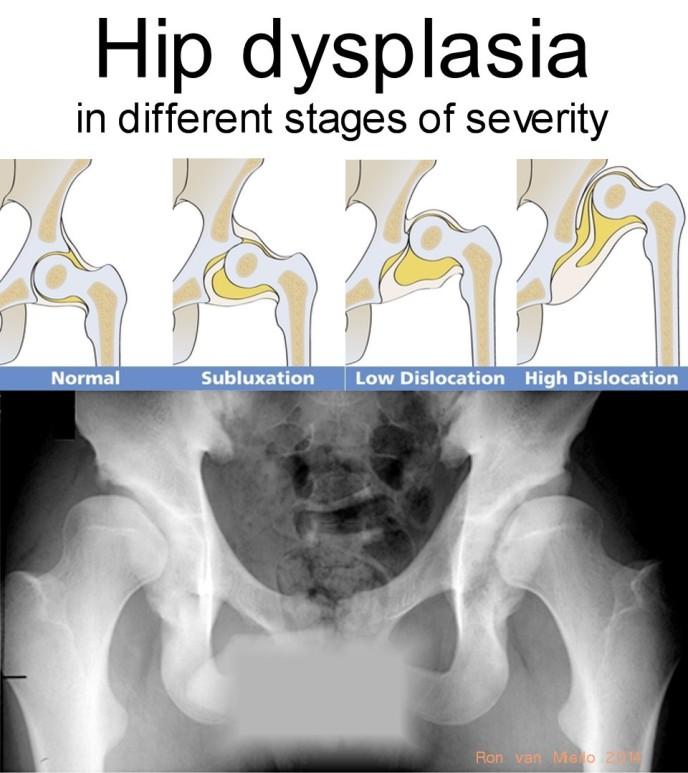 Dysplasiastages2