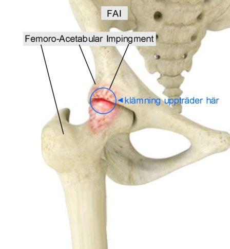 Femoro-Acetabular Impingement