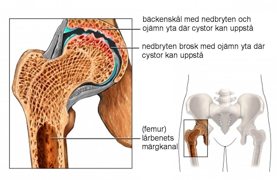 artros operation höft