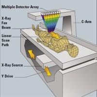 DEXA-scan
