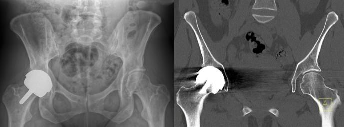Röntgen & CT-Scan