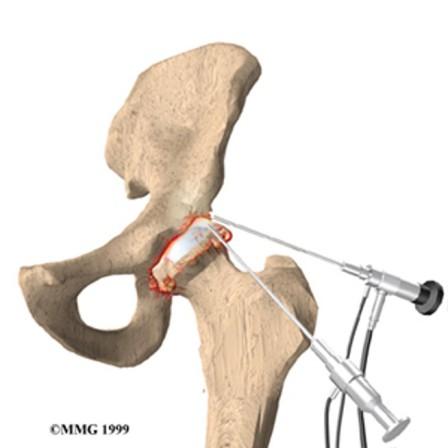 artroskopi-2