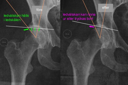 Arthroscopy can lead to acceleration of your hip problems