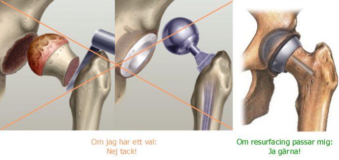 Resurfacing eller Hip Resurfacing