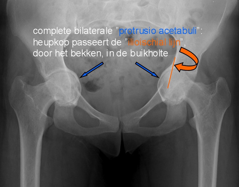 protrusio acetabuli NL